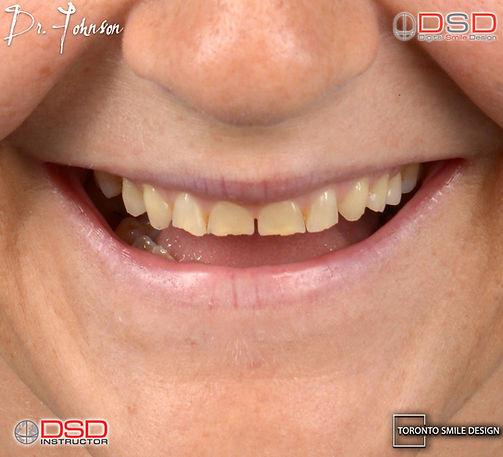 Full Mouth Rehabilitation - Toronto Dentist_edited.jpg