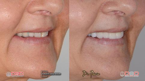 Toronto Cosmetic Dentist- Porcelain Crowns Toronto.jpeg