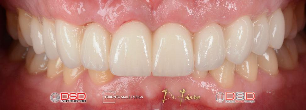 Toronto Cosmetic Dentistry - Porcelain Crowns and Veneers After Treatment - Post Op Porcelain Veneers