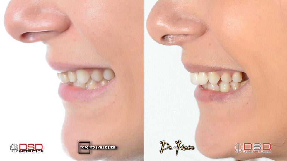 Cosmetic Dentistry Yorkville - Toronto C