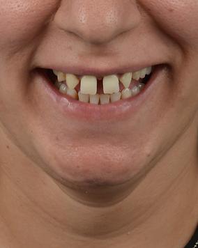dijital gülüş tasarımı nedir?