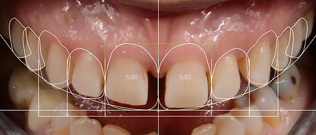 ayrık dişlerde gülüş tasarımı ön taraftan