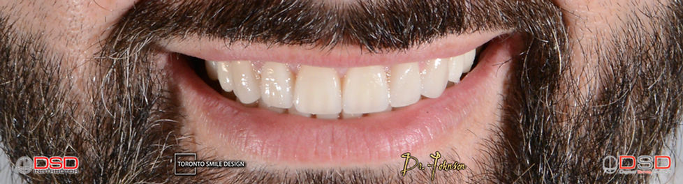 Porcelain Veneers Toronto - Best Cosmetic Dentist For Veneers.jpeg