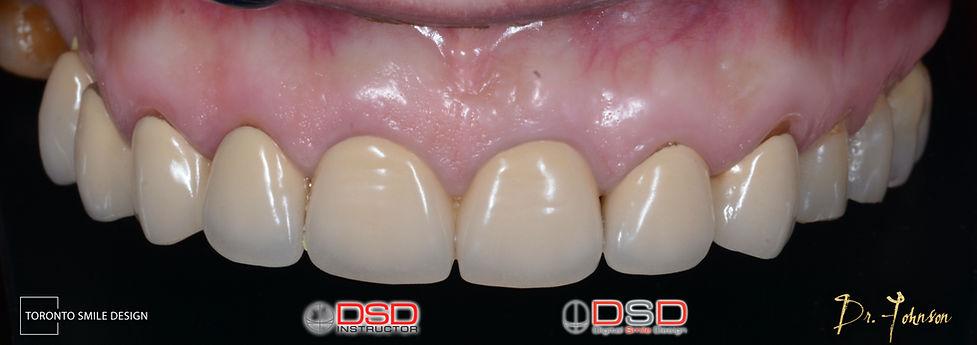 Toronto Dentist - Before Porcelain Venee