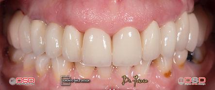 Dentist Toronto - Full Mouth Rehabilitation.jpeg
