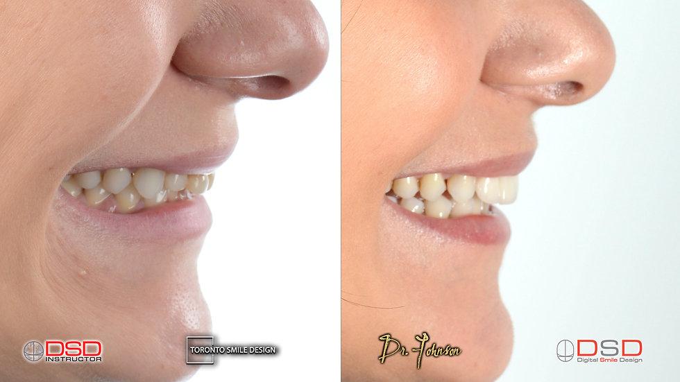 Toronto Cosmetic Dentistry - Yorkville D