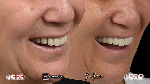 yorkville oral surgery - dental implant toronto.jpeg
