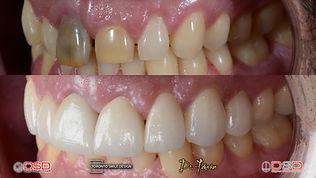 midline misalignment teeth - diastema cl