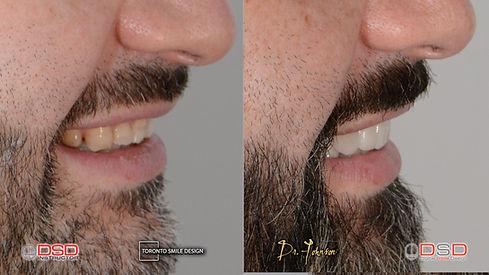 Veneer Toronto - Cosmetic Dentistry - Dental Veneers.jpeg