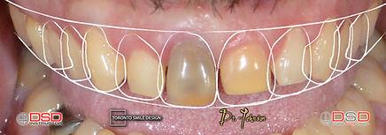 what causes yellow teeth - diastema - te