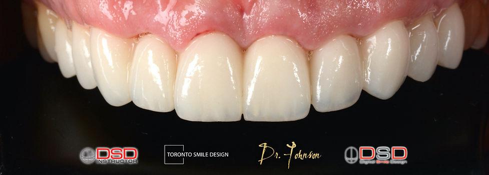 Toronto Smile Design - Cosmetic Dentistr