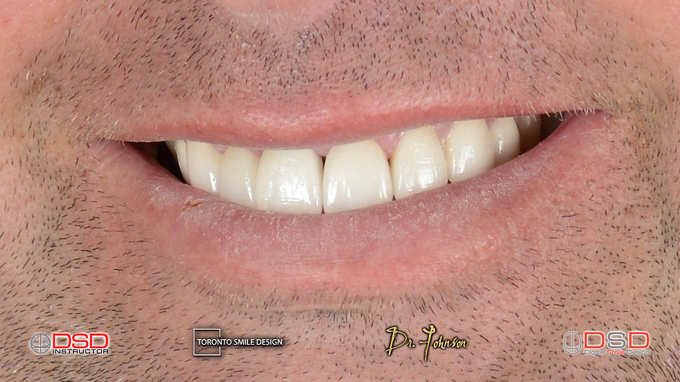 diastema before and after - best way to