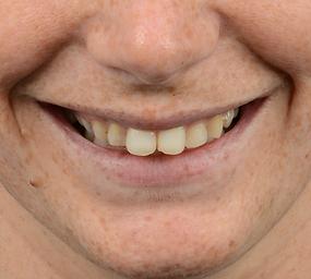 dijital gülüş tasarımı öncesi durum nasıldı? Gülüş tasarımı öncesi durum...