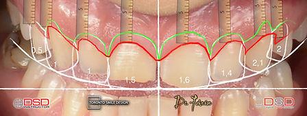 Laser Crown Lengthening - gum contouring