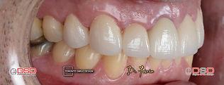 whiten yellow teeth fast - diastema trea