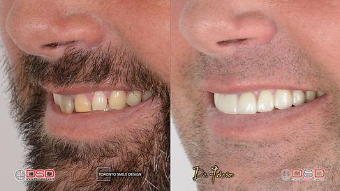 Laser Gum Contouring Procedure - Teeth G