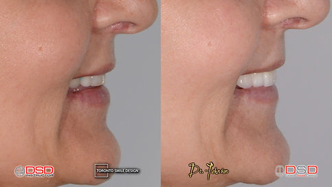 Cosmetic Dentist Toronto - Smile Makeover.jpeg