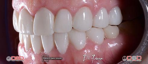 Toronto Cosmetic Dentistry - Dental Crowns Toronto.jpeg