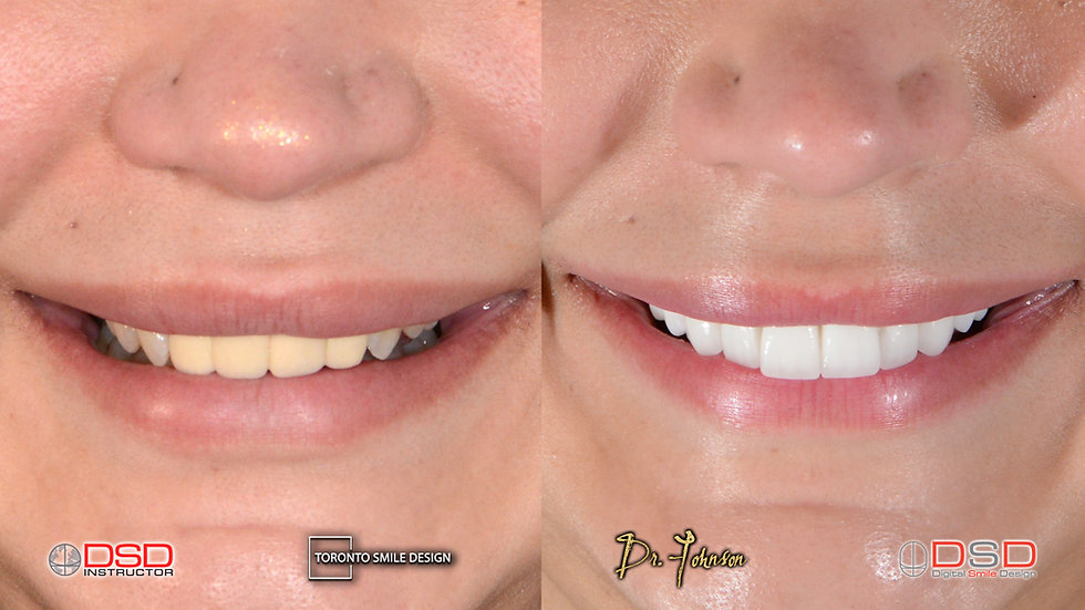 Toronto Cosmetic Dentistry - Dental Crow