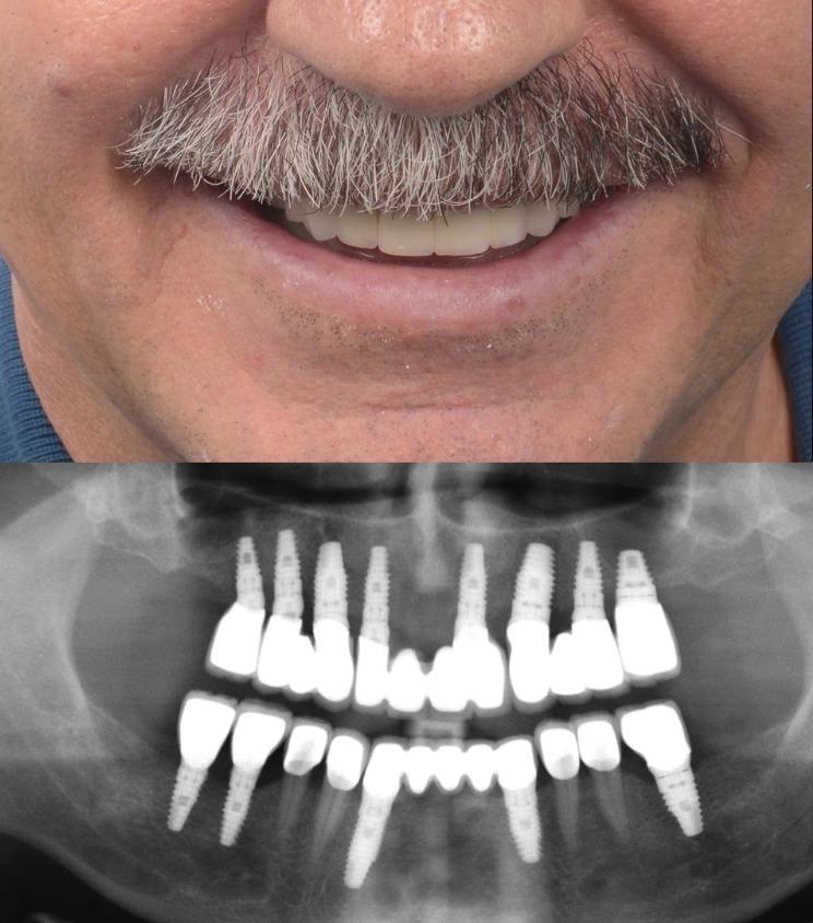 ön bölge implant
