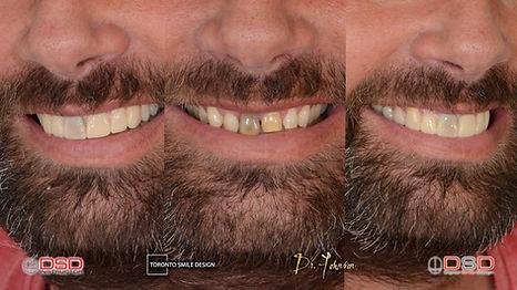 yellow vs white teeth - fix gap in teeth