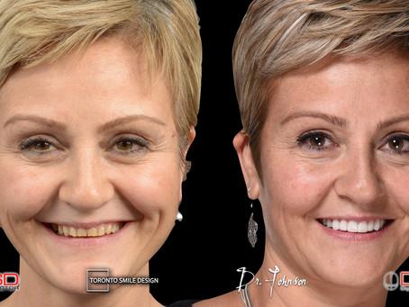 Short Teeth: Solutions in Cosmetic Dentistry in Toronto