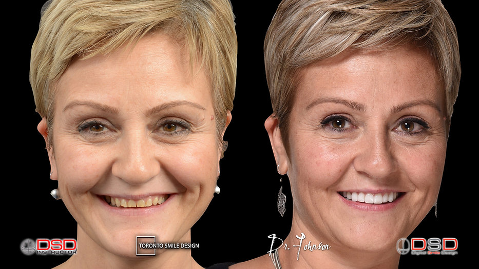 Toronto Dentist - Smile Makeover Toronto.jpeg
