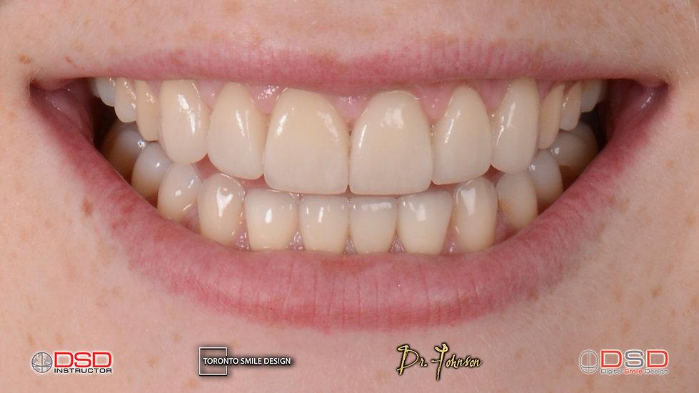Cosmetic Dentistry Procedure Porcelain Veneers after treatment