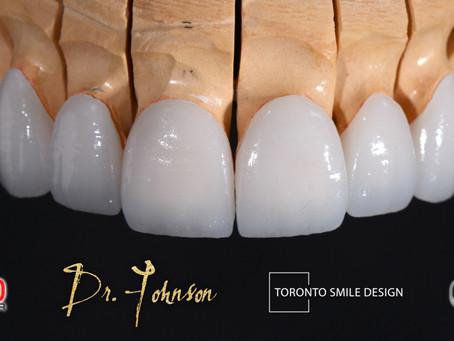 Dental Veneers: Pros and Cons