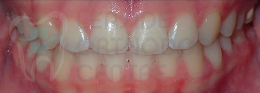 After Orthodontic Treatment Toronto - Braces Toronto - Intraoral Picture of a final result of orthodontic treatment of malaliged Smile