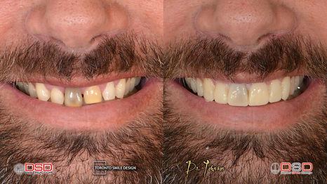 do porcelain veneers cover teeth discolo