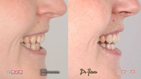 Toronto Dentist Dr. Johnson provides cosmetic dentistry in Yorkville.
