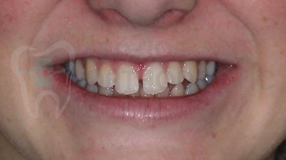 Case of the week - 8th of September 2019 - Toronto Orthodontist