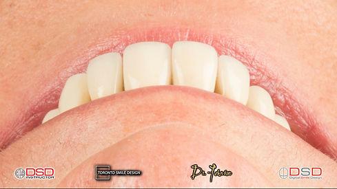 Dental Implants Near me - Oral Surgeon near me.jpeg