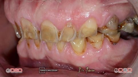Smile Makeover with Dental Bridges and Dental Crowns before Smile Design Procedure