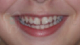 Before Orthodontic Treatment Toronto - Orthodontic Problems - Portrait Picture of malaliged Smile