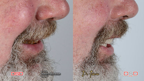 Smile Transformation and Smile makeover with Dental bridges and Dental Crowns Before treatments intra-oral pictures