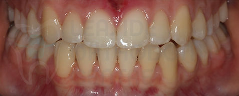 final intraoral picture of the patient after the orthodontic treatment - by orthodontist specialist Dr.Emel Arat