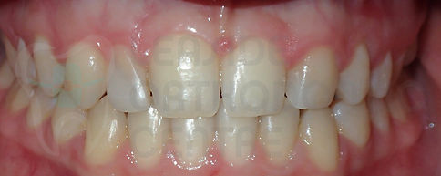 Orthodontic Case After treatment initial intraoral picture of orthodontic patient