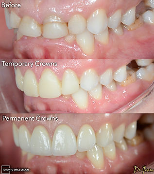 Porcelain Crowns - Toronto Cosmetic Dent