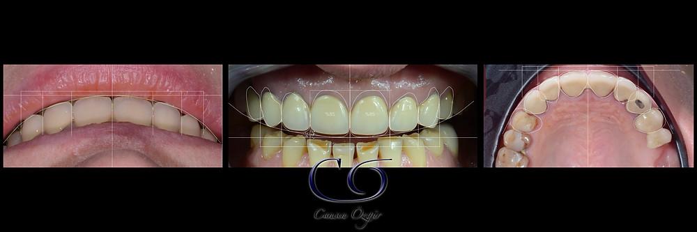 Digital Smile Frame - Digital Smile Design  - Dijital Gülüş Tasarımı