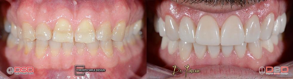 Porcelain Veneers - Best Cosmetic Dentist Canada.jpeg