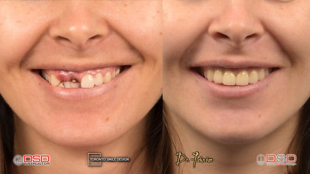 dental implants near me - toronto dental implants - how much are dental implants.jpeg