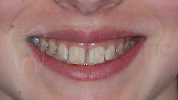 Orthodontic Case No 7 - 14th of October 2019 - Polydiastema case resolved by Toronto Orthodontist Dr. Emel Arat Before The treatment Portrait Picture of the patients smile