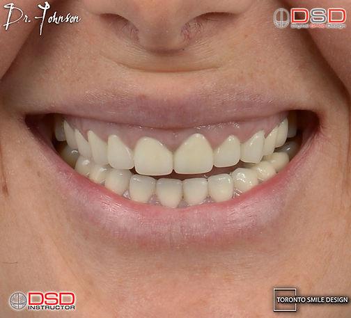 Dental Crowns with Crown Lengthening Procedure.001.jpeg