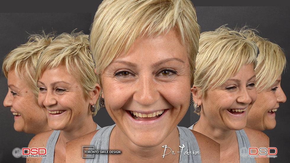 Smile Makeover - Toronto Smile Transformation.jpeg