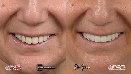 oral surgeon near me - dental implants toronto.jpeg