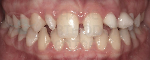 Orthodontic Case before treatment initial intraoral picture of orthodontic patient