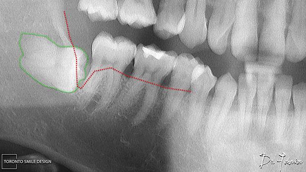 Wisdom Teeth Removal - Oral Surgeon Yorkville