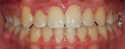 CASE 5 of the week - After Orthodontic Treatment Intraoral Picture